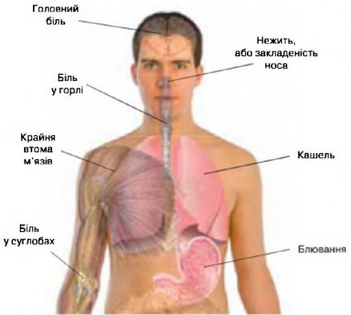Які бувають захворювання дихальної системи